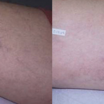 Spider Veins - Courtesy of GentleMax