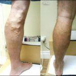 Varicose Veins - Courtesy of VenaCure